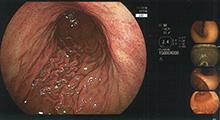 胃・大腸内視鏡検査