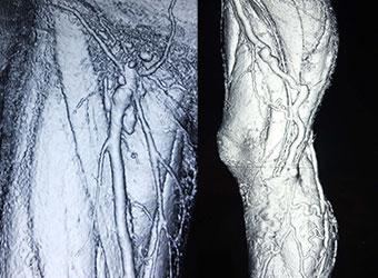 3DCT検査|下肢静脈瘤治療