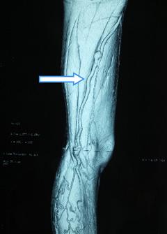 3DCTから見た治療前写真