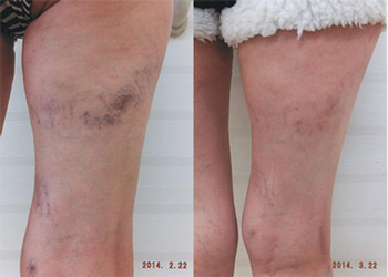硬化療法前と後 写真