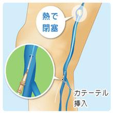 血管内焼灼術|下肢静脈瘤治療