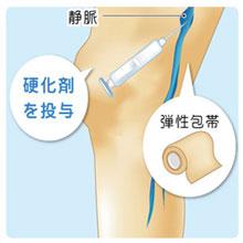 フォーム硬化療法|下肢静脈瘤治療