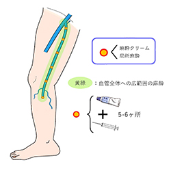 レーザー・高周波治療