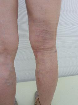 下肢静脈瘤治療後写真(前方)