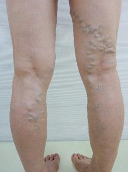 下肢静脈瘤治療前写真(前方)