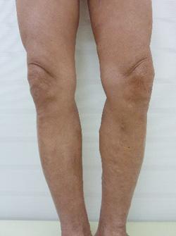 下肢静脈瘤治療後写真(後方)