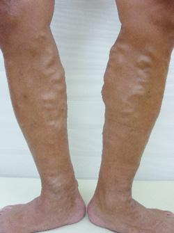 下肢静脈瘤治療前写真(後方)